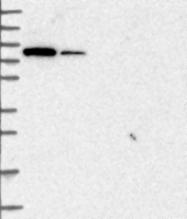 NBP1-85013 - MAP3K12