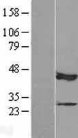 NBL1-12926 - MAP3K12 binding inhibitory protein 1 Lysate