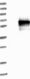 NBP1-86569 - MAP3K8 / TPL-2
