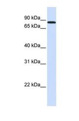 NBP1-58852 - MAP4K2