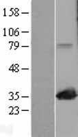 NBL1-12891 - MAPRE1 Lysate