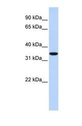 NBP1-59758 - MARCH1 / RNF171