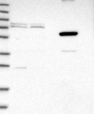 NBP1-89833 - MARCH10 / RNF190