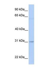 NBP1-60051 - MARCH2 / RNF172