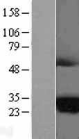 NBL1-06997 - MARCH2 Lysate