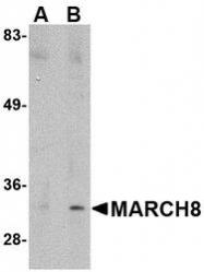 NBP1-76959 - MARCH8