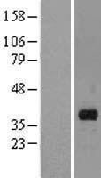 NBL1-07137 - MARCH8 Lysate
