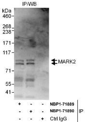 NBP1-71889 - MARK2