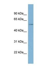 NBP1-59434 - Tricellulin