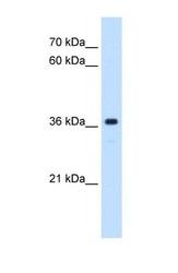 NBP1-60091 - MAS proto-oncogene