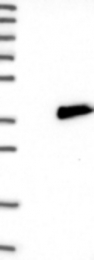 NBP1-90082 - ASCL1