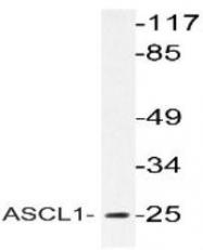 NBP1-51269 - ASCL1