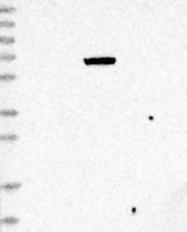 NBP1-81259 - MASP-2