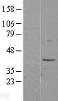 NBL1-12911 - MAT2B Lysate