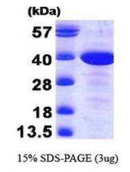 NBP1-30288 - MAT2B