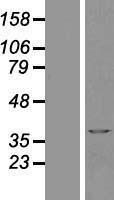 NBL1-07804 - MATH1 Lysate