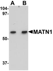 NBP1-77350 - Matrilin-1
