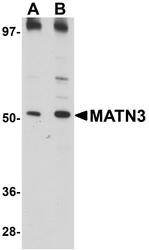 NBP1-77017 - Matrilin-3