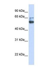 NBP1-62511 - MBOAT7