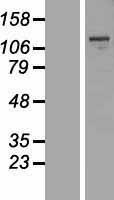 NBL1-12936 - MBTPS1 Lysate
