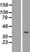 NBL1-12942 - MCART1 Lysate