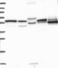 NBP1-82794 - MCCC2
