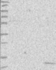 NBP1-81823 - MCEE