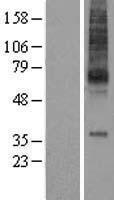 NBL1-12947 - MCHR Lysate