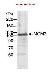 NB100-245 - MCM3