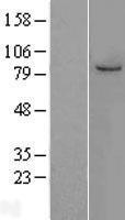NBL1-12956 - MCM7 Lysate