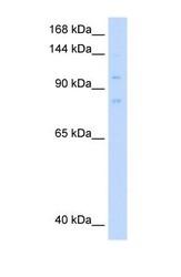 NBP1-58129 - MCM8