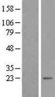 NBL1-12962 - MCT1 Lysate