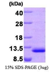 NBP1-30245 - MDC / CCL22