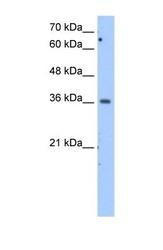 NBP1-54797 - MDH1