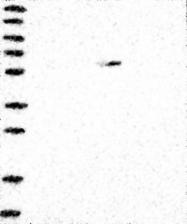 NBP1-83564 - MDH1B