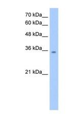 NBP1-54649 - MDH2