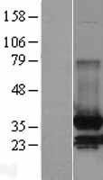 NBL1-12966 - MDH2 Lysate
