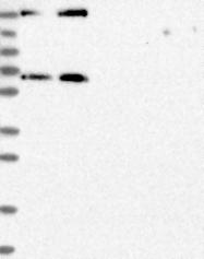 NBP1-85839 - MDM1