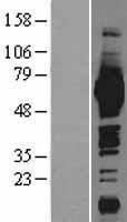NBL1-12973 - ME1 Lysate