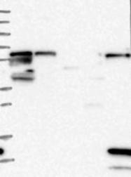 NBP1-85871 - ME3