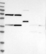NBP1-85658 - MECR