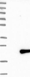 NBP1-87006 - MED21