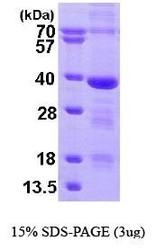NBP1-44479 - MED4