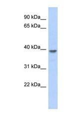 NBP1-55435 - MED8