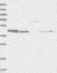 NBP1-87790 - MAP2K1