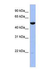NBP1-55001 - MAP2K7