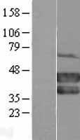 NBL1-14174 - MEL-18 Lysate