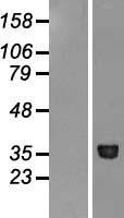 NBL1-13018 - METAP1 Lysate