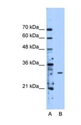 NBP1-54928 - METTL1
