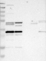 NBP1-88386 - METTL1